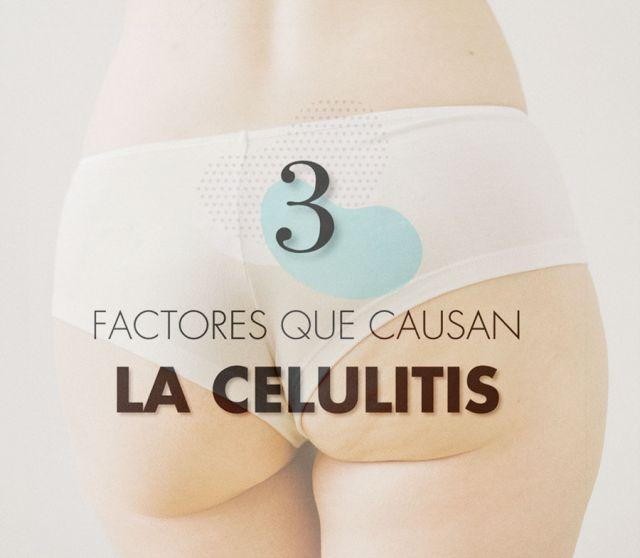 Los 3 factores principales que inciden en la celulitis